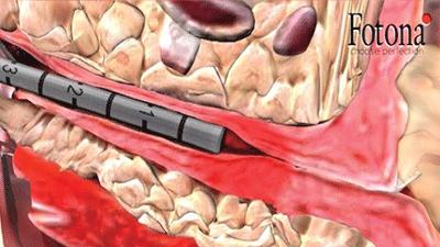 尿道内レーザープローブで尿道に直接照射します。